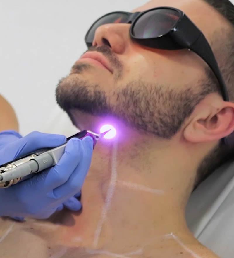 laser-hair-portfolio-imgs-02